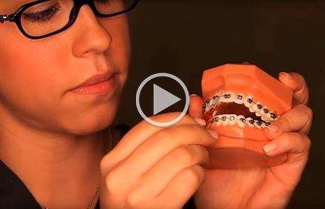 Wearing Braces Akad Orthodontics in Oakville, ON